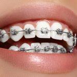 Braces Teeth Pain