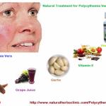 Polycythemia Vera – A Blood Disorder